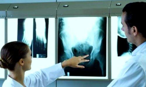 aplicaciones medicas de los rayos x