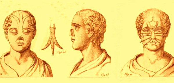 origen de la cirugía plástica