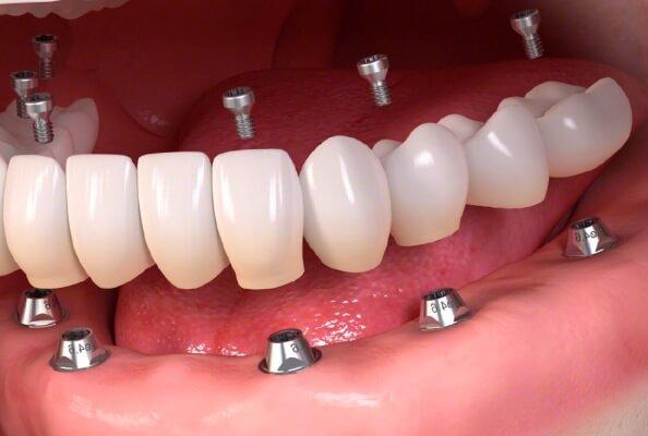 cómo ha evolucionado la dentadura postiza