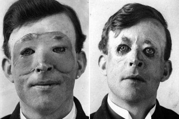 historia de la cirugía reparadora