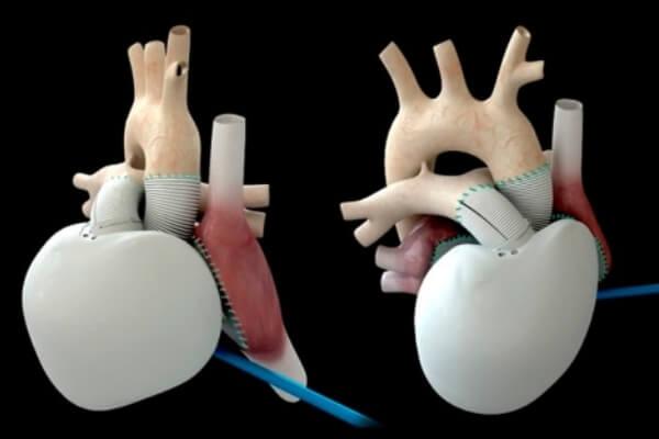 origen e historia del corazón artificial