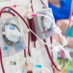 origen e historia del riñón artificial