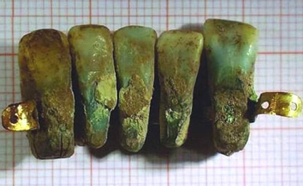 primera dentadura postiza de la historia