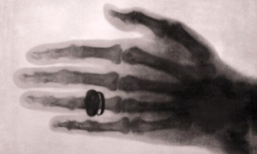 primera radiografia